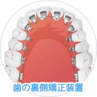 裏側矯正装置(舌側矯正)