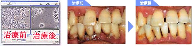 歯周病症例