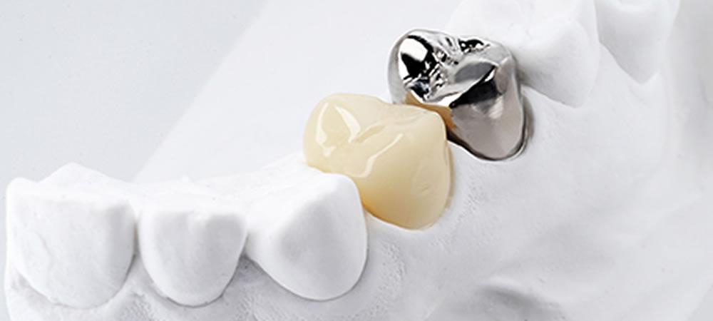 金属不使用の審美歯科推奨
